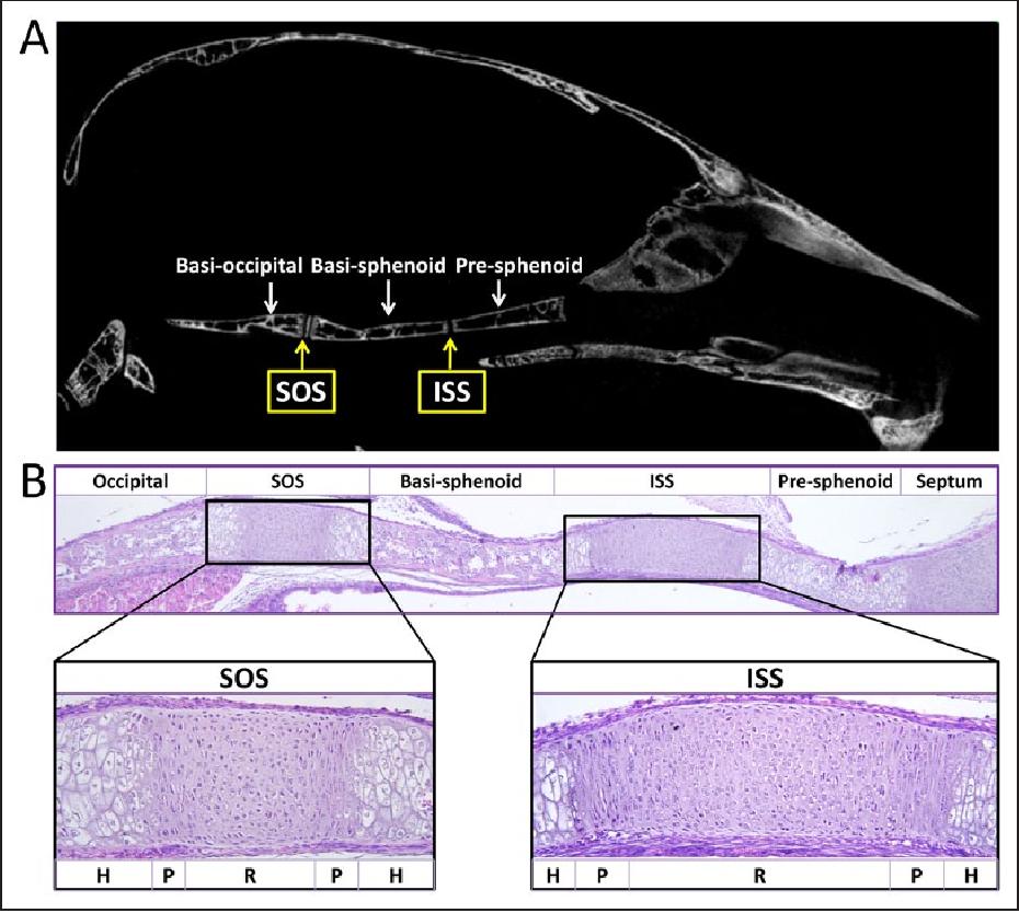 Figure 1 From Developmental Regulation Of The Growth Plate And Cranial Synchondrosis Semantic Scholar 803 отметок «нравится», 3 комментариев — radiopaedia.org (@radiopaedia) в instagram: figure 1 from developmental regulation