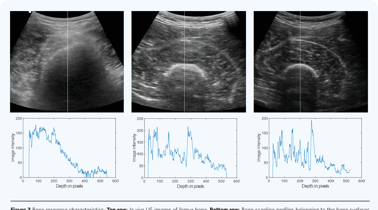 Figure 3 from Ultrasound imaging and segmentation of bone