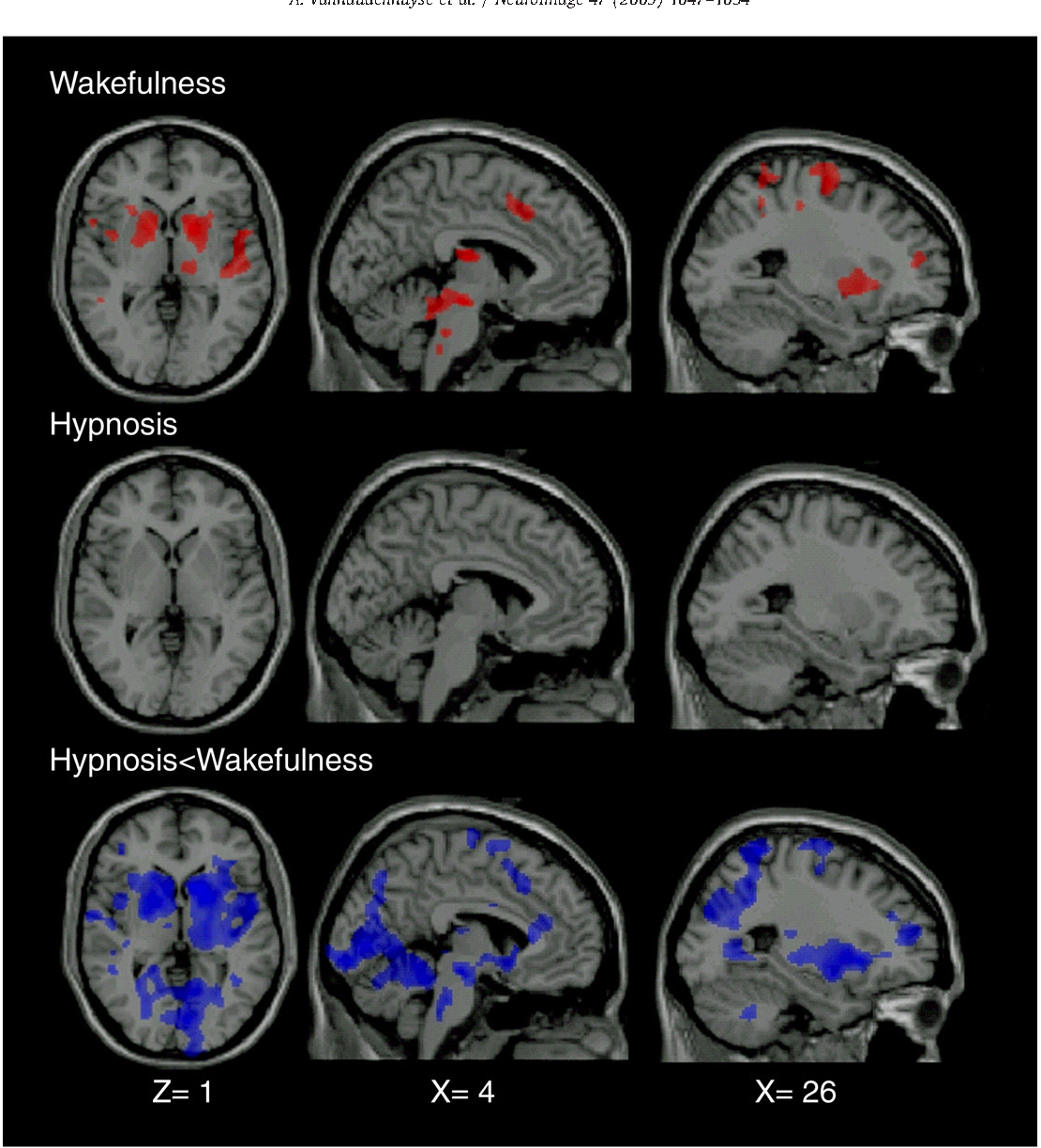 Figure 3 from Pain and non-pain processing during hypnosis