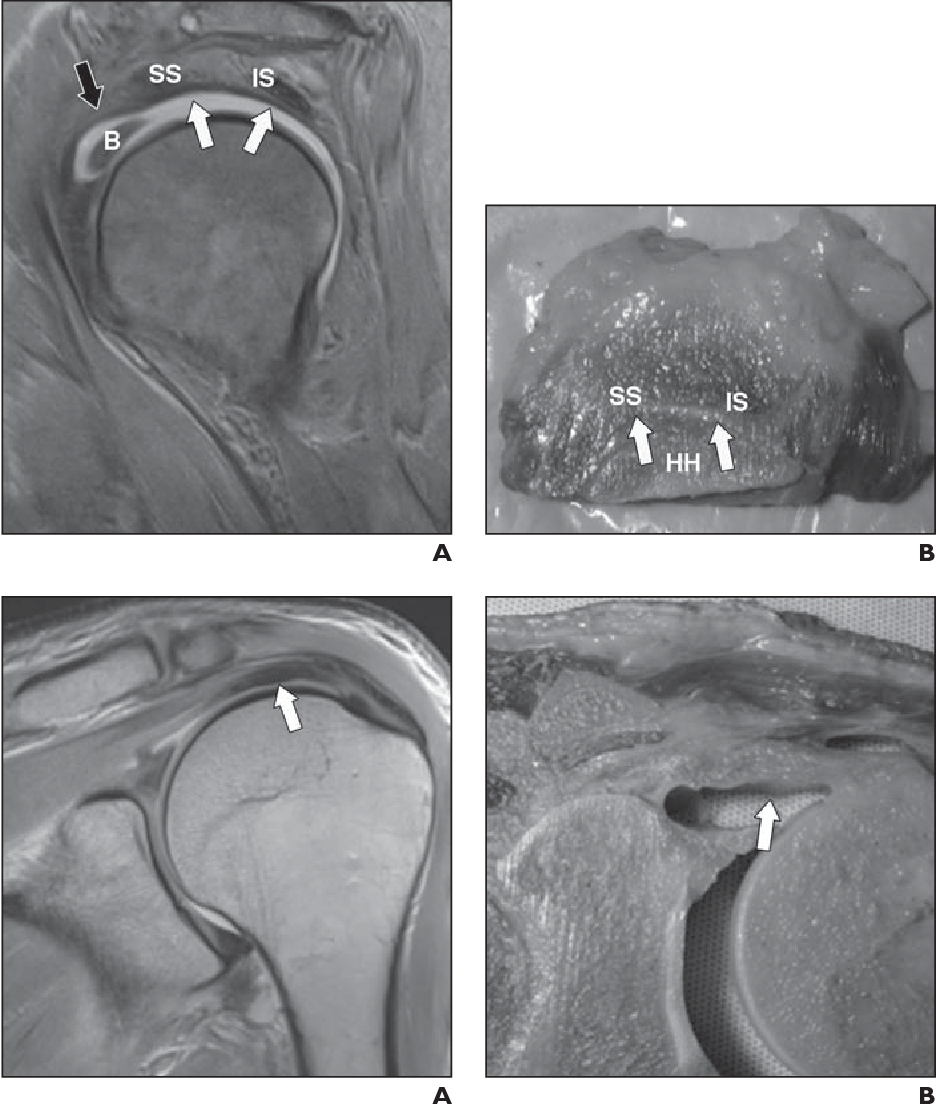 Figure 1 From Rotator Cable Mri Study Of Its Appearance
