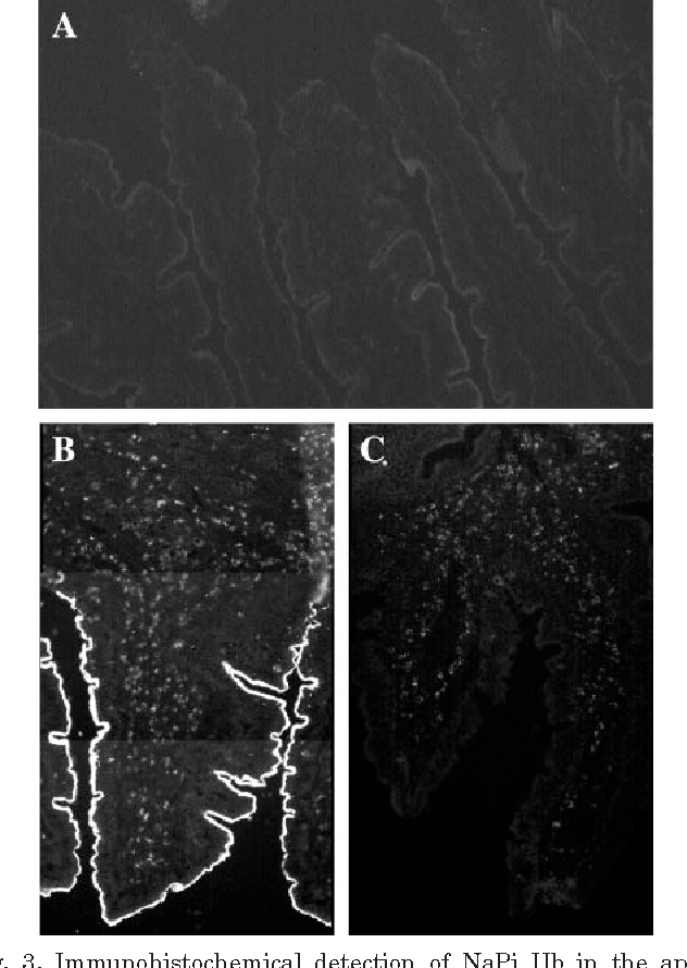 Fig. 3. Immunohistochemical detection of NaPi IIb in the apical membrane of goat midjejunum (B; control animal) but not of goat duodenum (A; control animal). NaPi IIb staining was performed in paraformaldehyde-fixed cryosections with mouse-specific anti-NaPi IIb antibody (1:500). Specific signal was generated using a secondary antibody labeled with DTAF (1:200). Incubation of jejunal tissues with secondary antibody only did not reveal any signal (C).