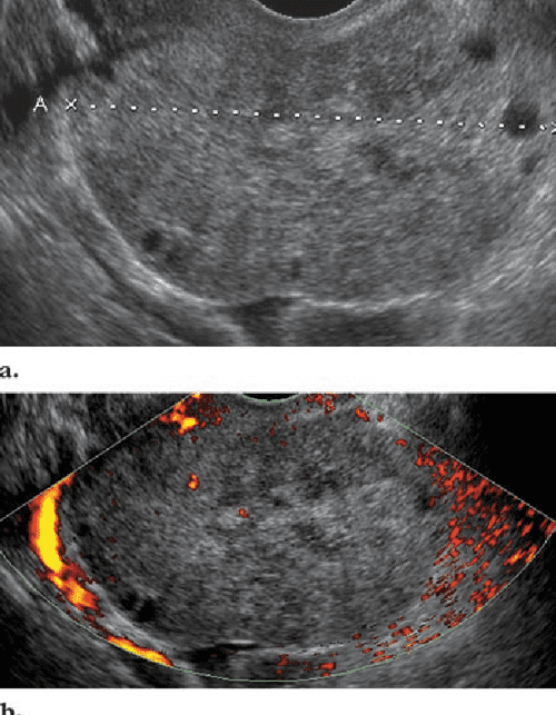 Figure 7 from Pearls and pitfalls in diagnosis of ovarian ...