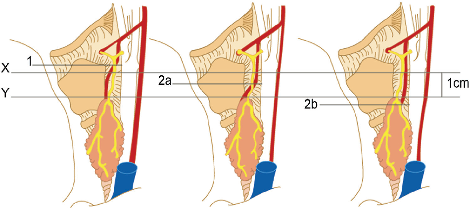 Figure 2 From Identification Of The External Laryngeal Nerve Its