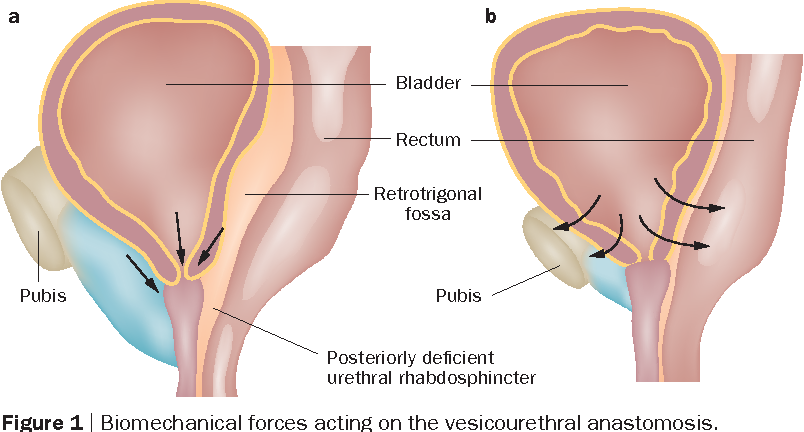 Figure 1 From Optimizing Radical Prostatectomy For The Early Recovery Of Urinary Continence Semantic Scholar