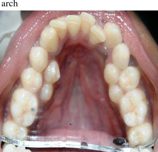 PDF] Multiple Non-Syndromic Bilaterally Erupted Para Premolars in the  Mandibular Arch: A Case Report | Semantic Scholar