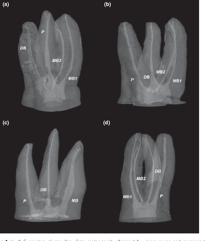Root canal morphology of the mesiobuccal root of maxillary
