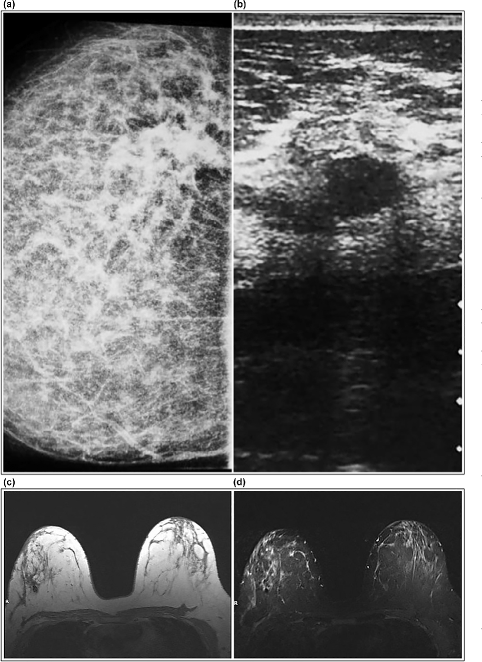 Figure 2 from Fat Necrosis of the Breast: Magnetic Resonance