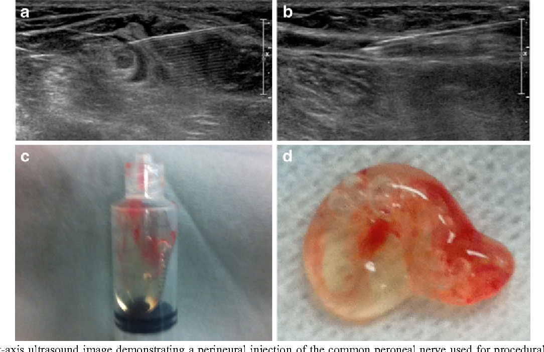 Ultrasound-Guided Aspiration and Injection of an ...