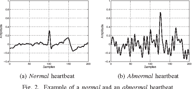 Figure 2 from Real-time heartbeat outlier removal in
