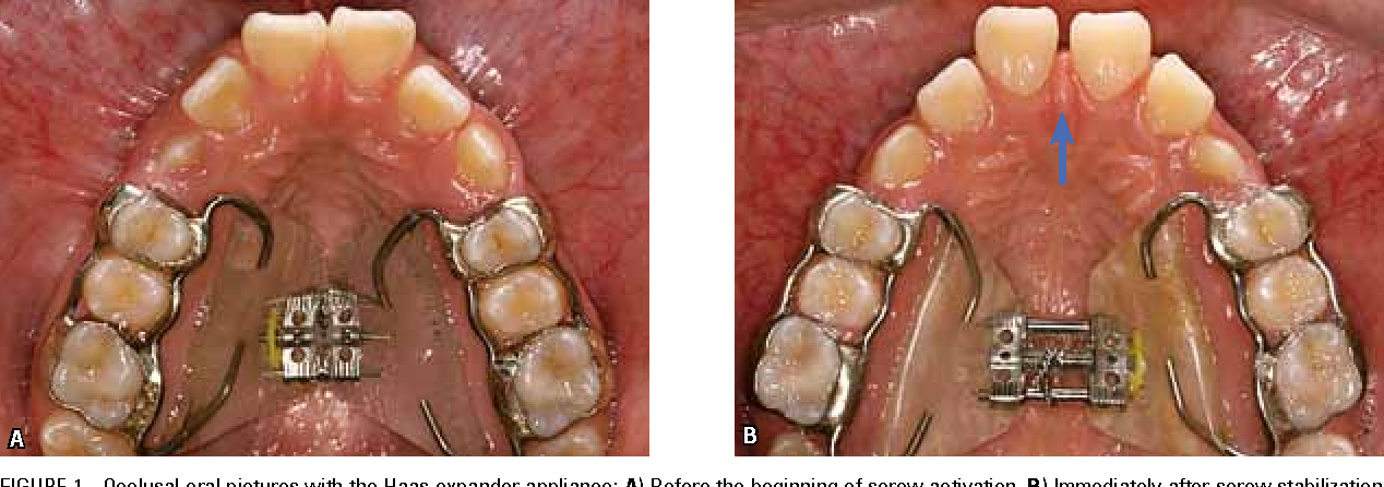 Figure 1 From Transverse Effects Of Rapid Maxillary