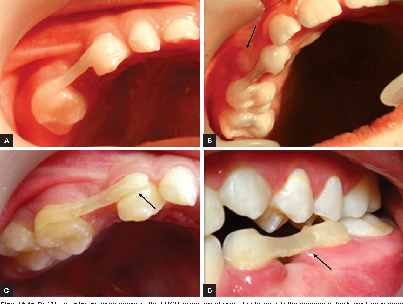 Figure 1 From Clinical Success Of Fiber Reinforced Composite Resin