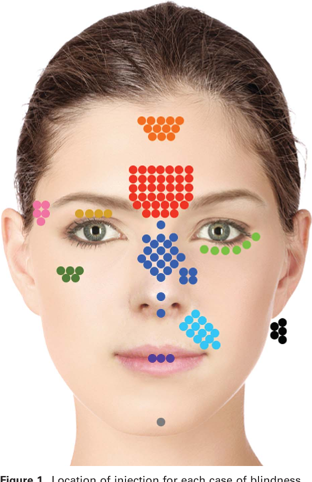 Figure 1 from Avoiding and Treating Blindness From Fillers