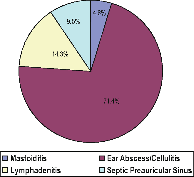 Figure 1 from Presentation of Preauricular Sinus and
