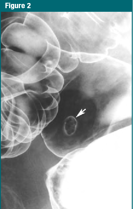 Figure 2 From Colorectal Cancer Screening Double Contrast Barium Enema Examination In Average Risk Adults Older Than 50 Years 1 Semantic Scholar