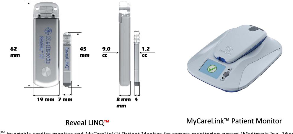 Figure 2 from Ambulatory electrocardiogram monitoring
