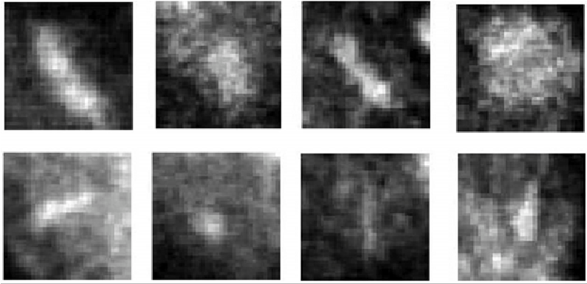 Detection Of Breast Cancer Microcalcifications In Digitized