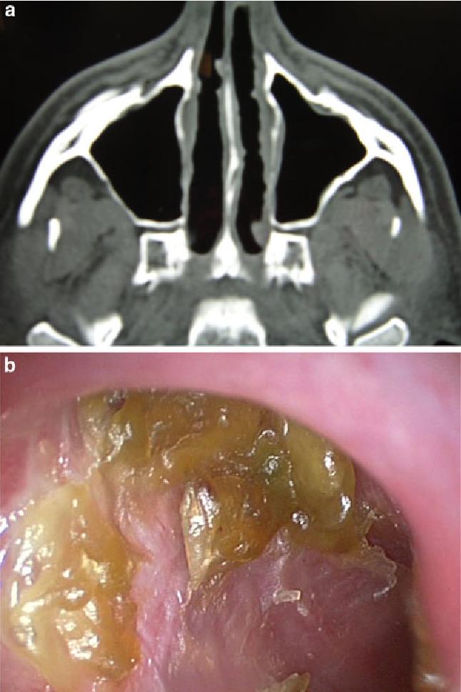 Rhinitis sicca, dry nose and atrophic rhinitis: a review