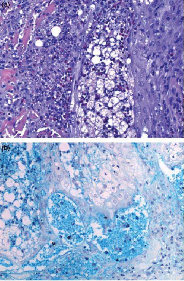 Figure 2 From Human Immunodeficiency Virus Hiv Associated