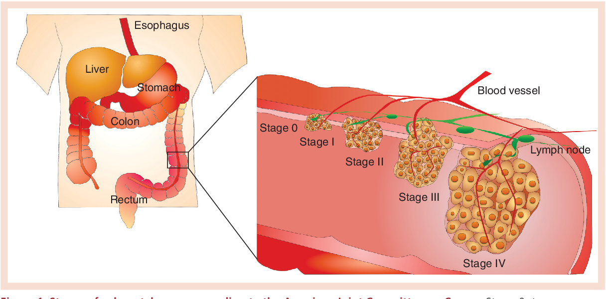 Figure 1 From Targeted Nanoparticles For Colorectal Cancer Semantic Scholar