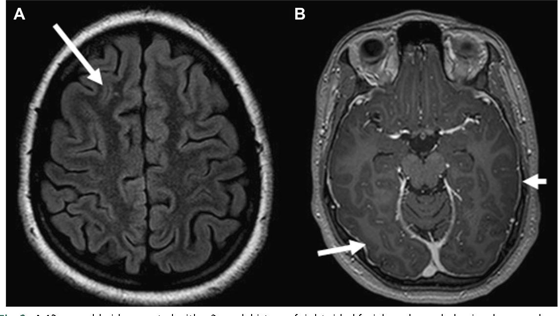 Figure 2 From Anti Nmda Receptor Encephalitis Semantic Scholar
