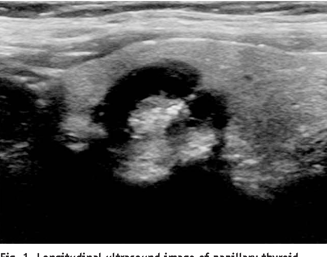 Figure 1 From Partially Cystic Thyroid Nodules Ultrasound