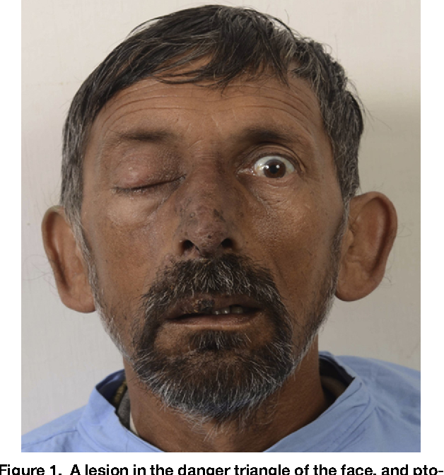 Figure 1 from Danger Triangle of Face and Septic Cavernous