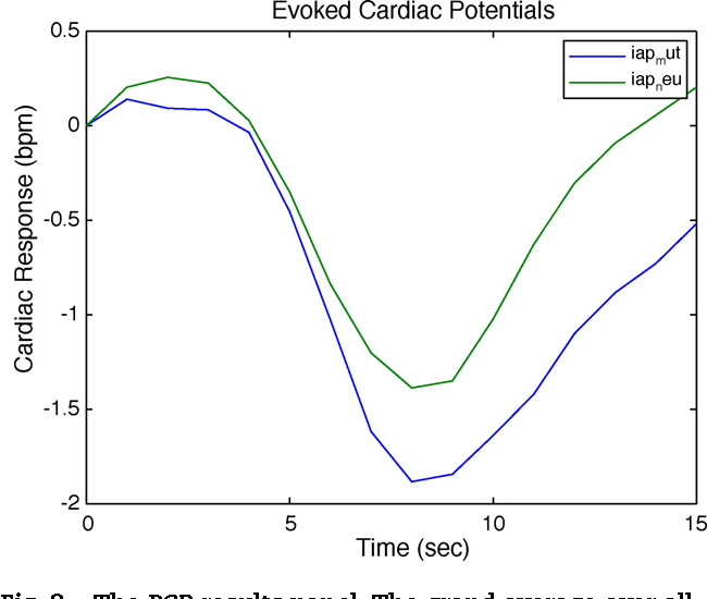 KARDIA: A Matlab software for the analysis of cardiac