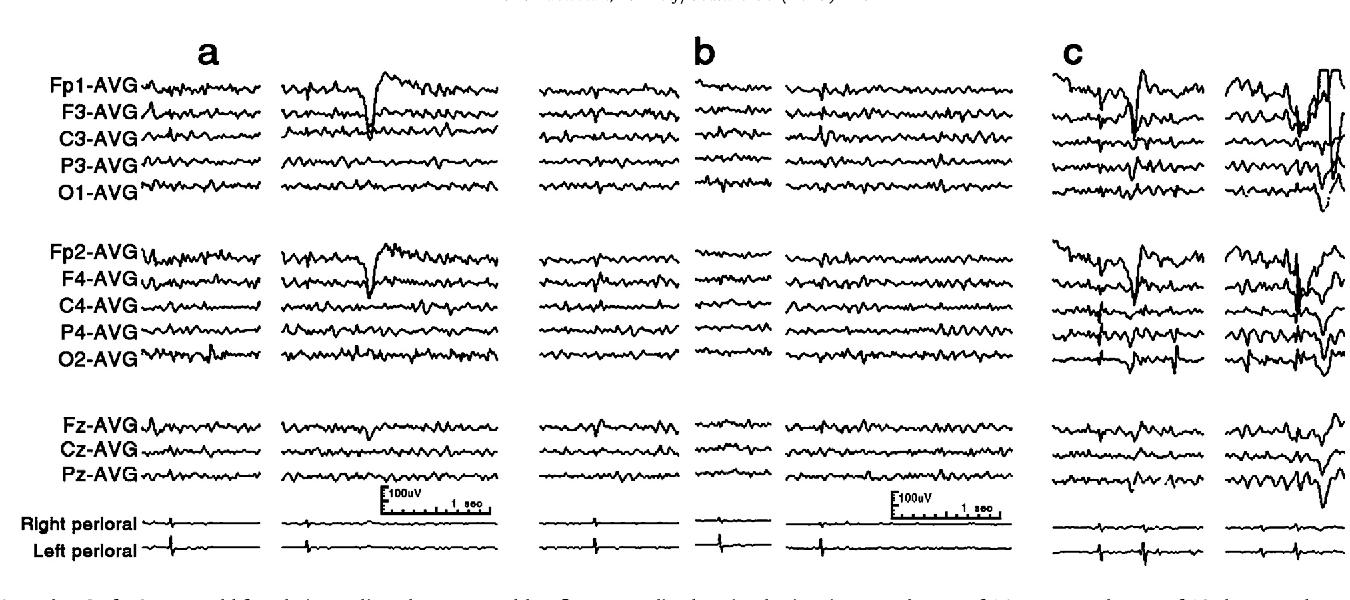 Orofacial reflex myocloni  Definition, relation to epilepsy