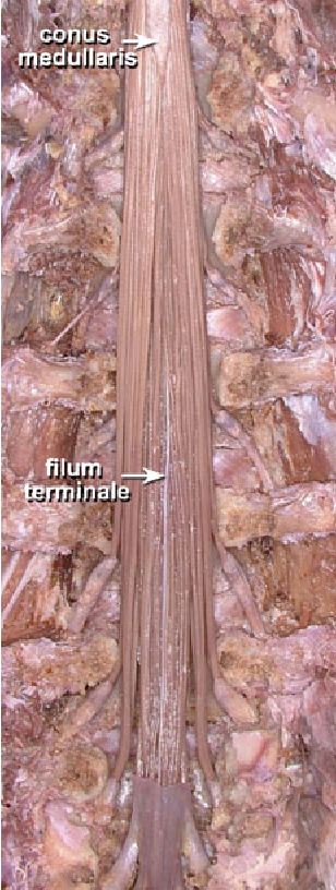 Figure 2 From Lumbosacral Intrathecal Nerve Roots An Anatomical Study Semantic Scholar Start studying back structures (w/ cadaver pics). semantic scholar