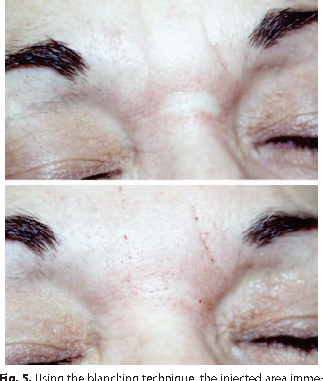 Figure 5 from A blanching technique for intradermal