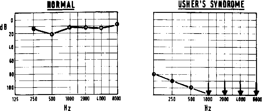Figure 3 From Usher S Syndrome Electrophysiological Tests Of The