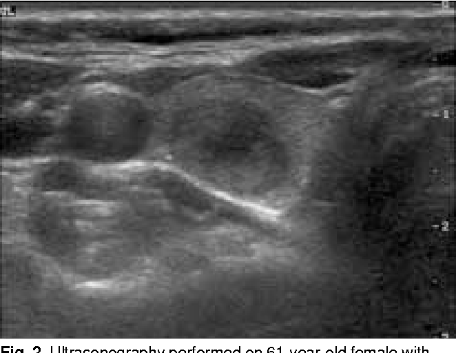 Figure 2 From Ultrasonographic Findings Of Medullary Thyroid