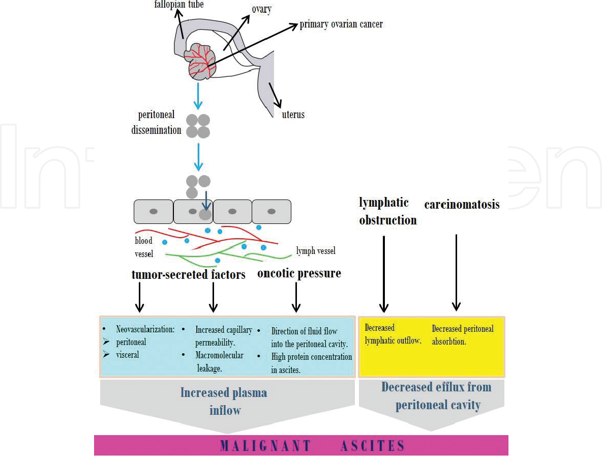 Figure 1 From Ascites In Advanced Ovarian Cancer Semantic Scholar
