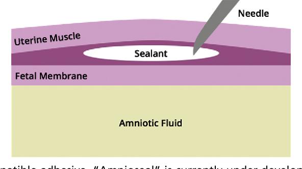 Figure 8 from Minimally Invasive Fetal Surgery  - Semantic