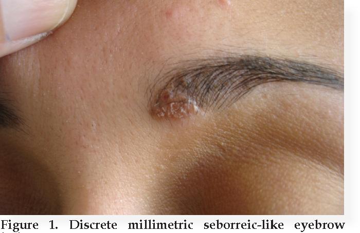 Figure 1 from SARCOIDOSIS MIMICKING SEBORRHEIC DERMATITIS