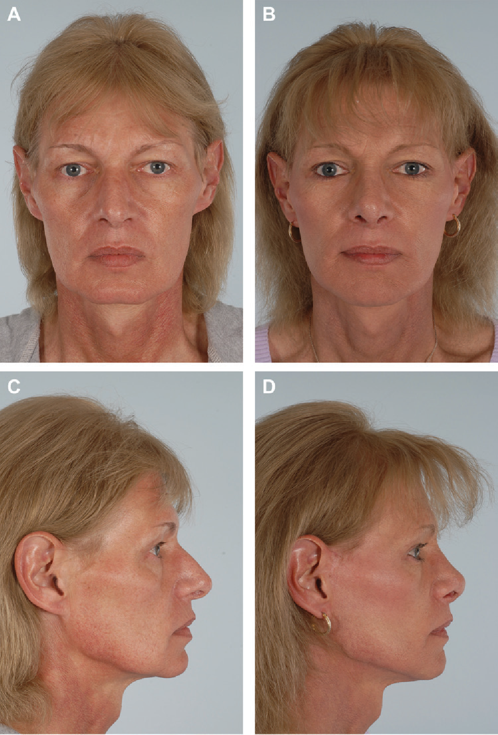 Figure 1 from Applications of fat grafting in facial