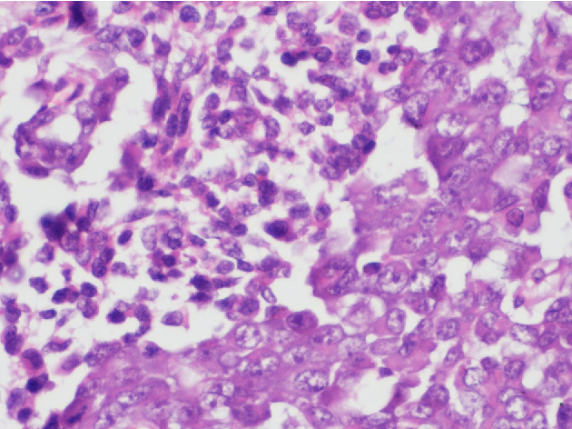 Ovarian Small Cell Carcinoma Of Hypercalcemic Type In An Adolescent Girl Semantic Scholar