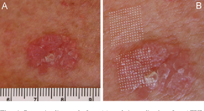 Lesion Dimensions Following Ablative Fractional Laser Treatment In Non Melanoma Skin Cancer And Premalignant Lesions Semantic Scholar