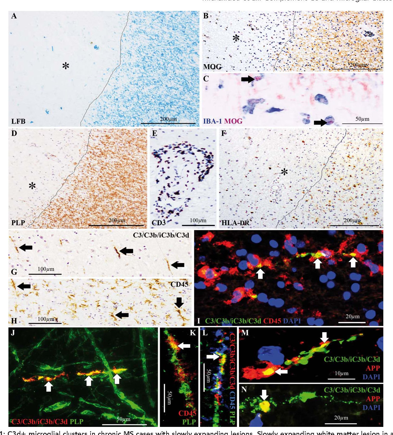 Figure 1 from Complement C3 on microglial clusters in
