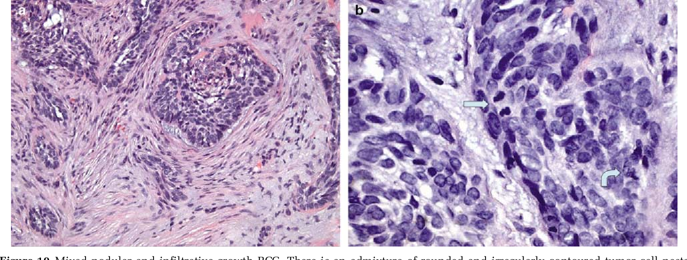 Carcinoma basocelular nodular infiltrative