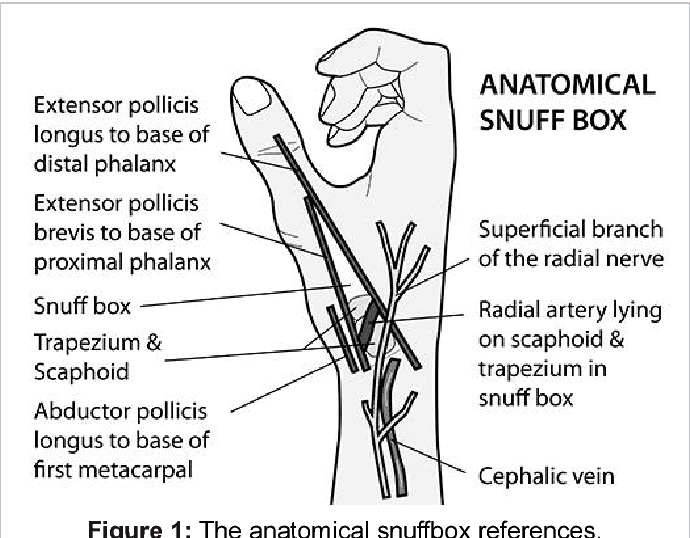Pdf Distal Transradial Access In The Anatomical Snuffbox For Coronary Angiography And Aortography Semantic Scholar Anatomical snuff box, peshawar, pakistan. pdf distal transradial access in the