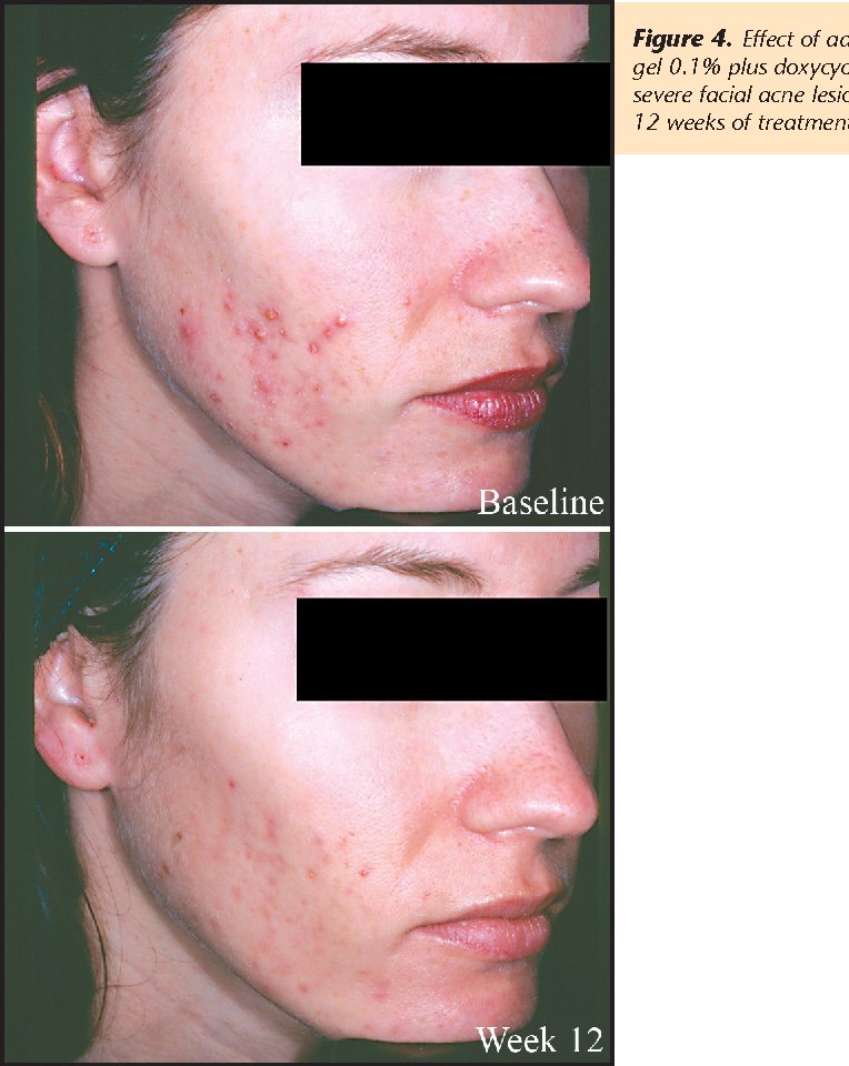 Combination Therapy With Adapalene Gel 0 1 And Doxycycline For Severe Acne Vulgaris A Multicenter Investigator Blind Randomized Controlled Study Semantic Scholar
