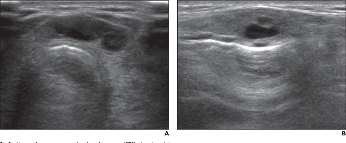 Figure 2 51 From Ultrasound Findings Of Papillary Thyroid
