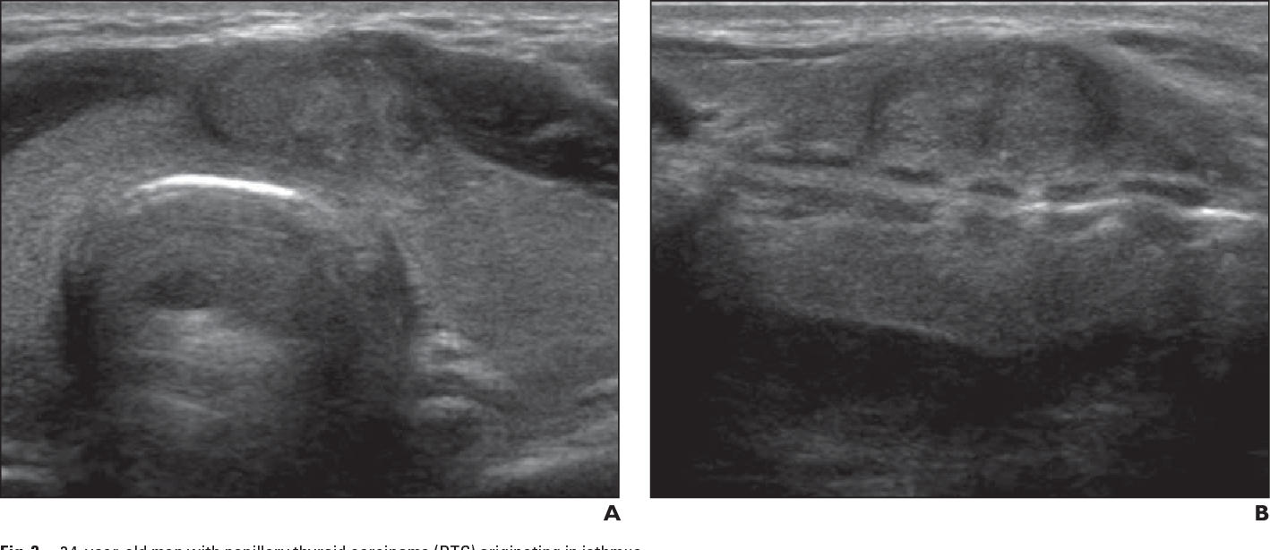 Figure 3 34 From Ultrasound Findings Of Papillary Thyroid