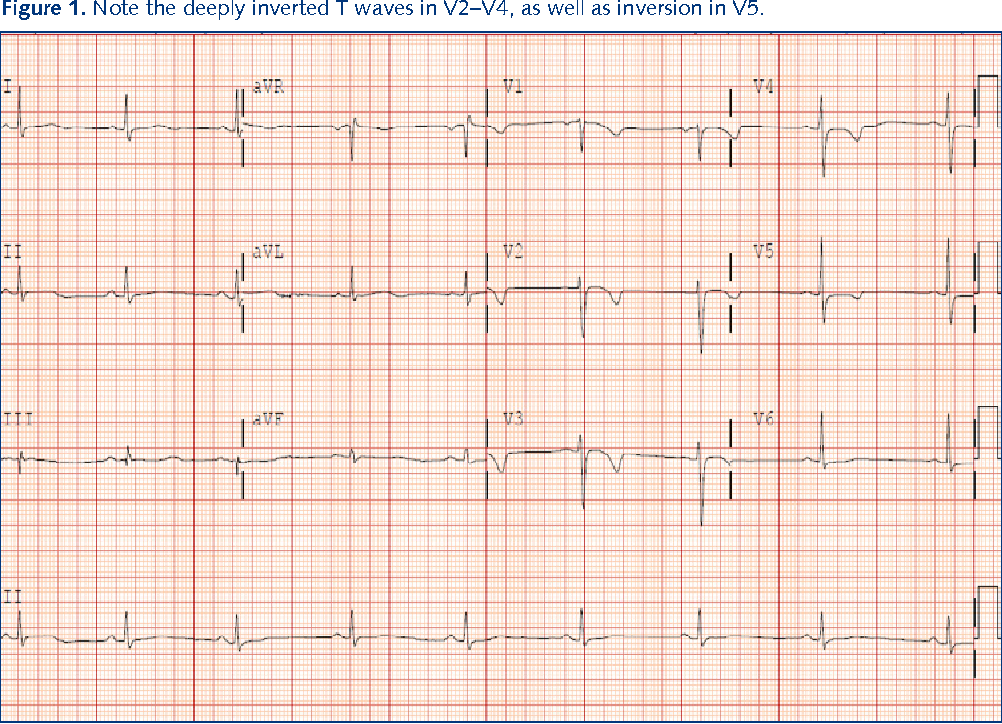 Figure 1 from A broken heart: a woman with chest pain and an