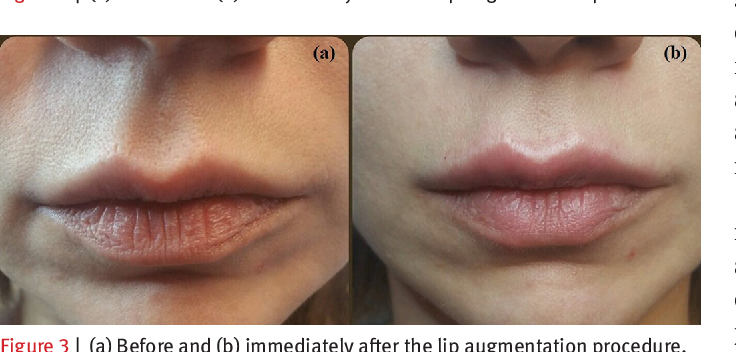PDF] Four-point injection technique for lip augmentation