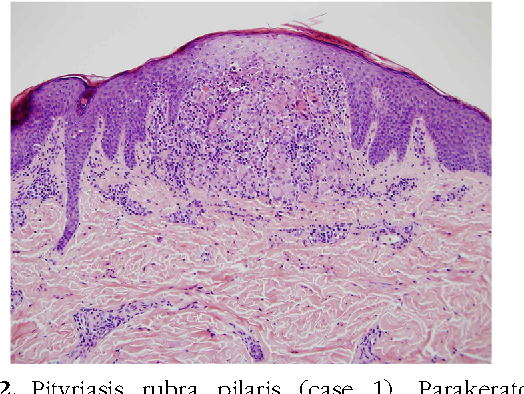 Pityriasis rubra pilaris with histologic features of lichen