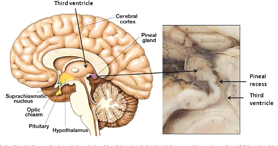 Figure 1 from CSF generation by pineal gland results in a