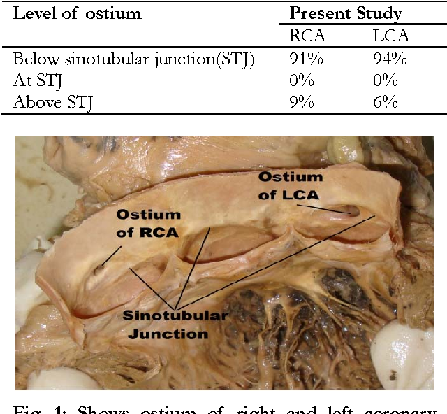 what is the coronary artery ostium