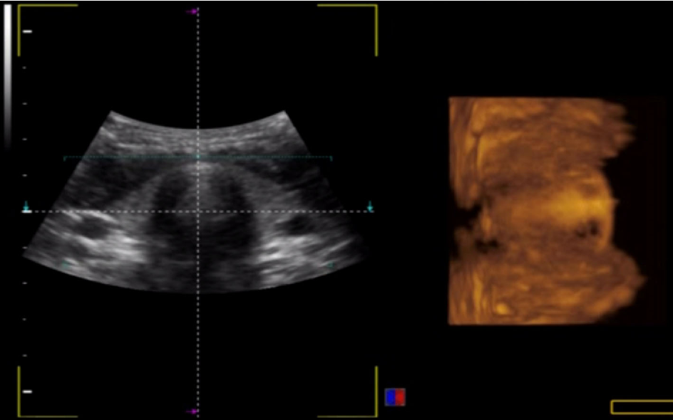 Pdf Thyroid Gland Visualization With 3d 4d Ultrasound Integrated